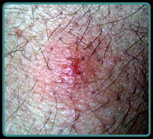 Bird Mite Dermatitis
